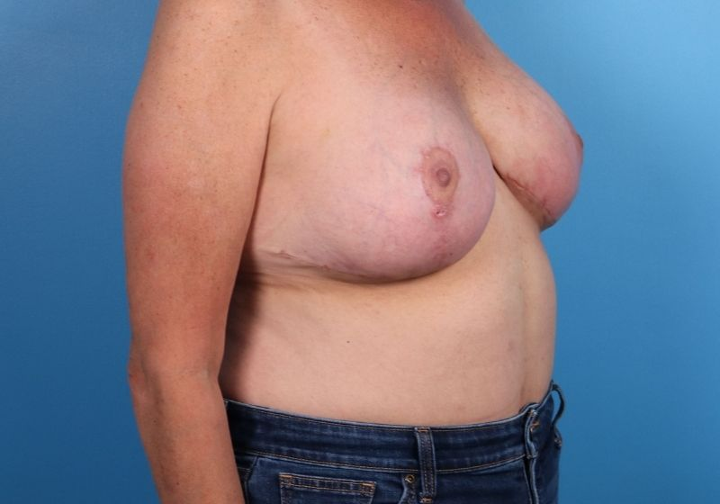 Breast Revision Surgery Raleigh After Side