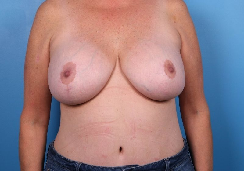 Breast Revision Surgery Raleigh Before Front
