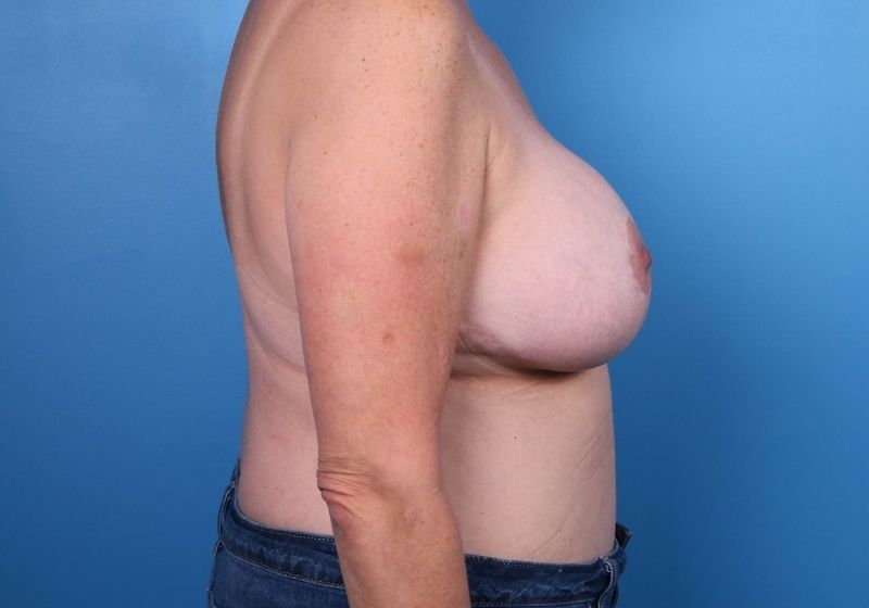 Breast Revision Surgery Raleigh Before Profile