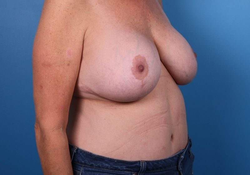 Breast Revision Surgery Raleigh Before Side
