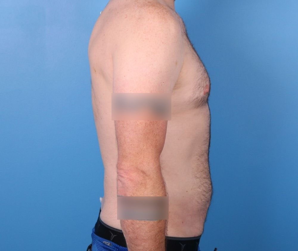 liposuction surgery raleigh after surgery image