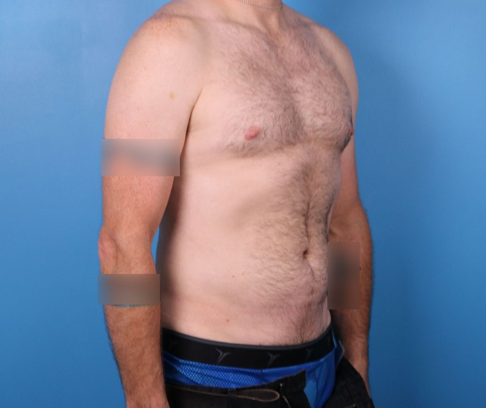 liposuction surgery raleigh nc after surgery