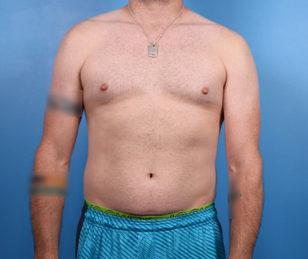 liposuction surgery raleigh before surgery