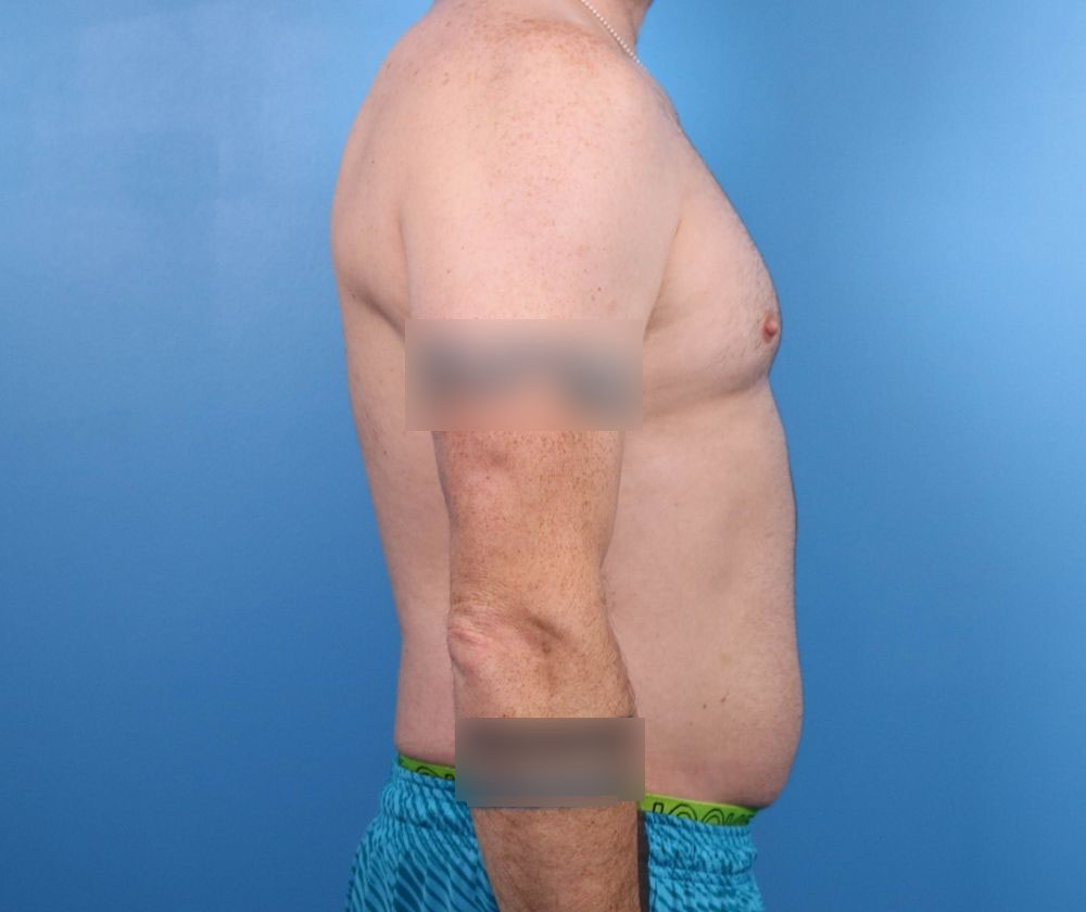 liposuction surgery raleigh before surgery image