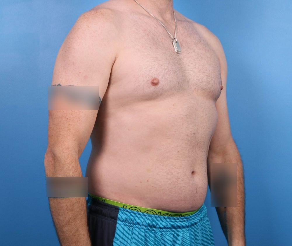 liposuction surgery raleigh nc before surgery
