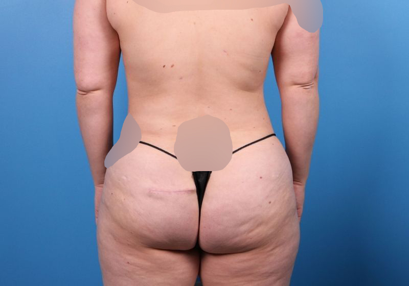 After Liposuction Surgery Raleigh Back