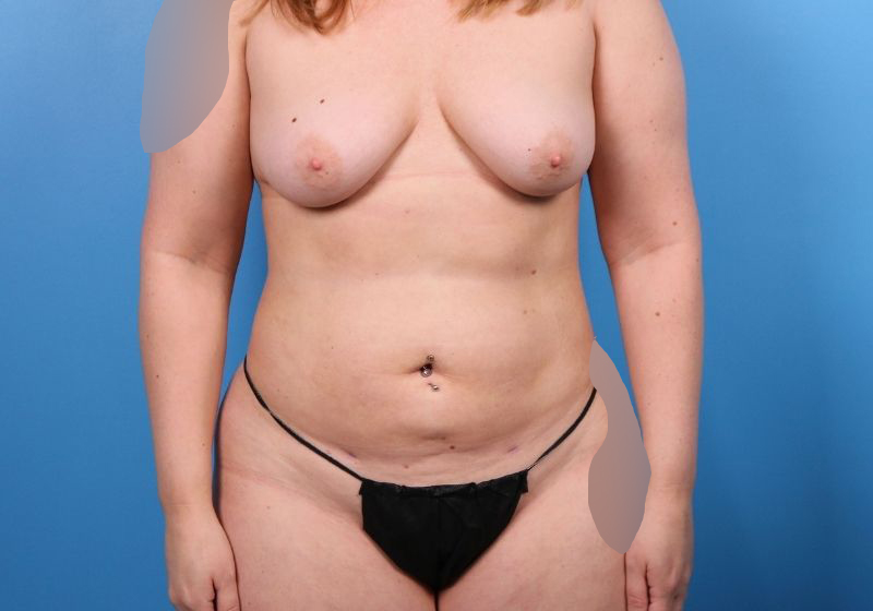 After Liposuction Surgery Raleigh Front