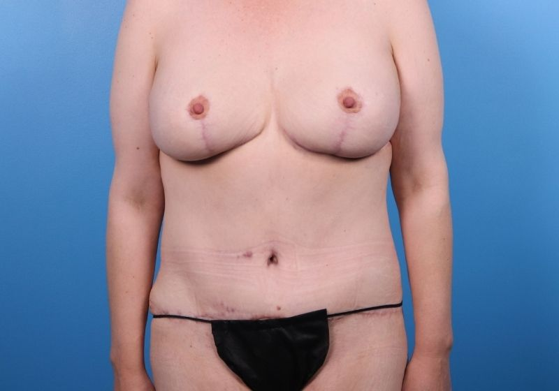 After Procedure Liposuction Plastic Surgery Raleigh Front