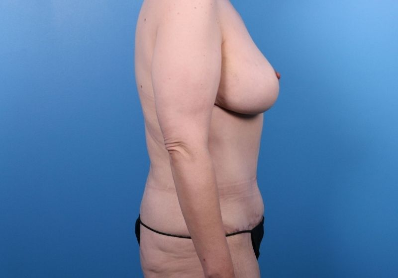 After Procedure Liposuction Plastic Surgery Raleigh Profile