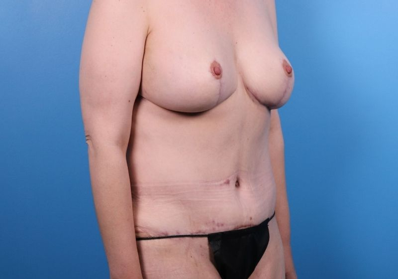 After Procedure Liposuction Plastic Surgery Raleigh Side