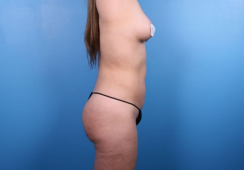After Liposuction Surgery Raleigh Profile