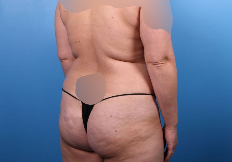 Before Liposuction Surgery Raleigh Back Side