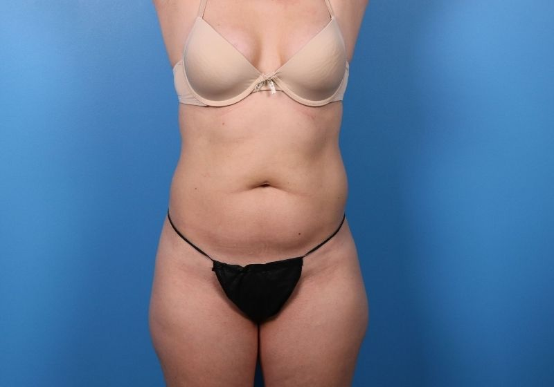 Before Liposuction Surgery Raleigh Front