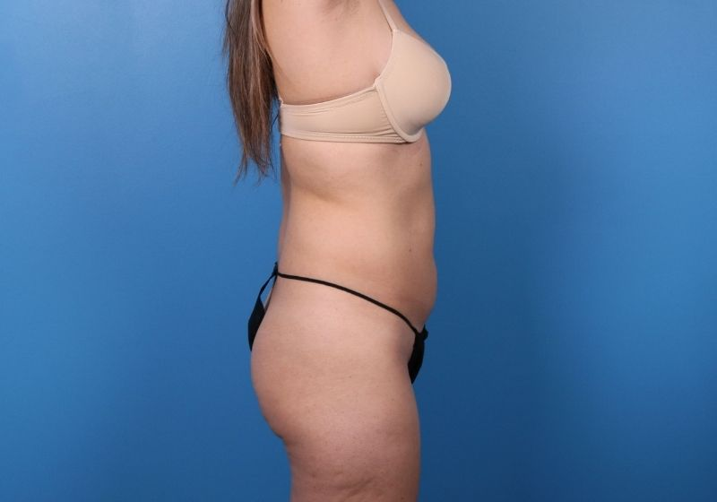 Before Liposuction Surgery Raleigh Profile