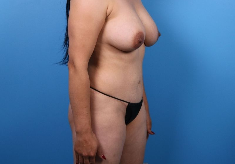 Before Liposuction Surgery Raleigh Side