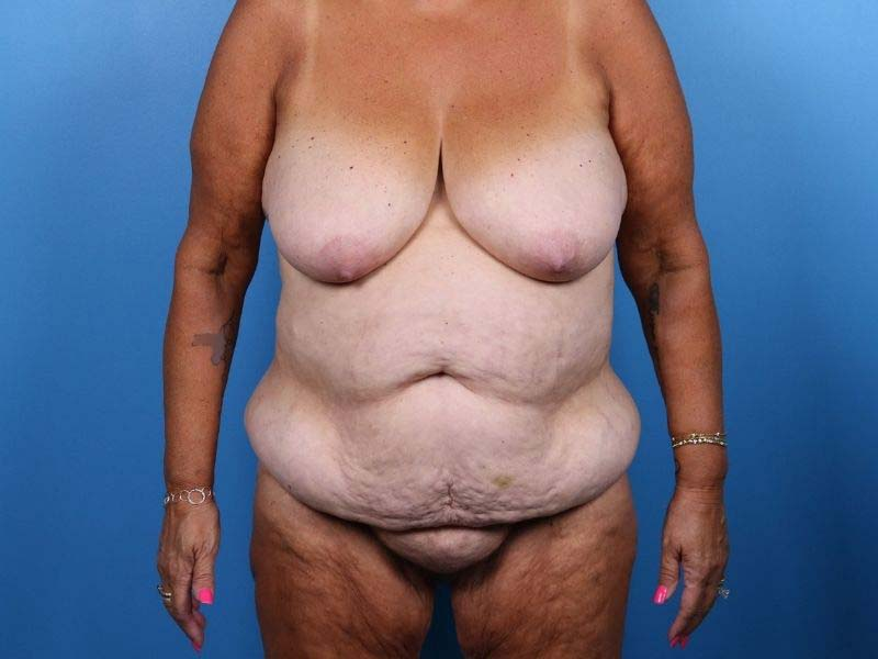 liposuction raleigh before photo