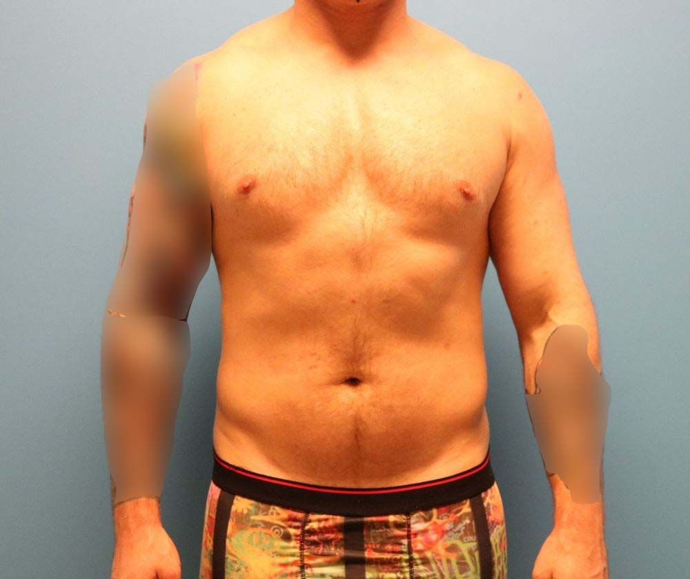 Raleigh Liposuction surgery for men- before surgery