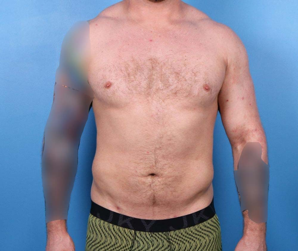 Raleigh Liposuction surgery for men- after