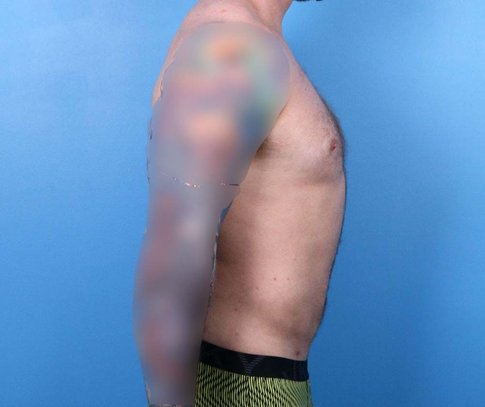 Raleigh Liposuction surgery male after surgery