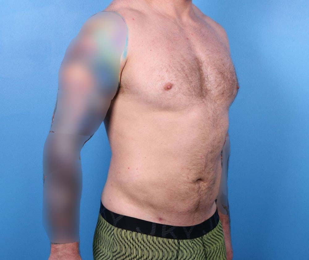Raleigh Liposuction surgery after proceedure