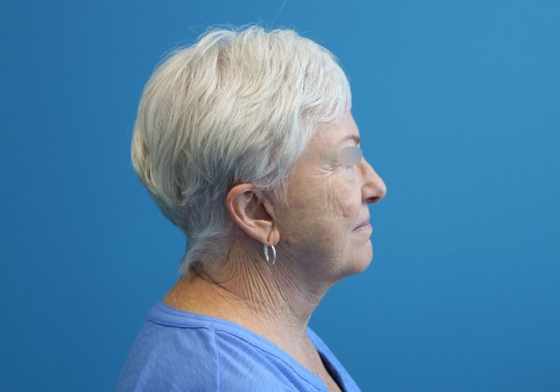 Raleigh neck lift procedure after surgery- profile