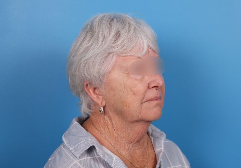 Raleigh neck lift procedure before surgery- side