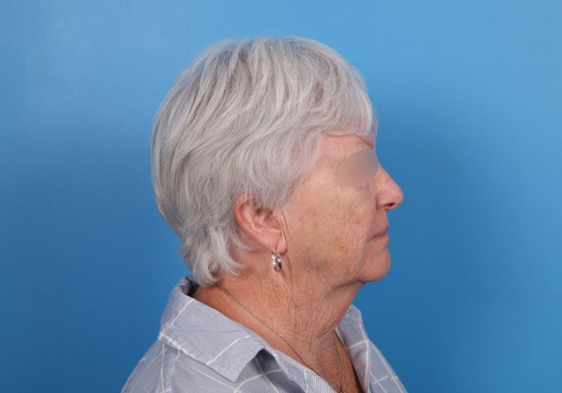 Raleigh neck lift procedure before surgery- profile
