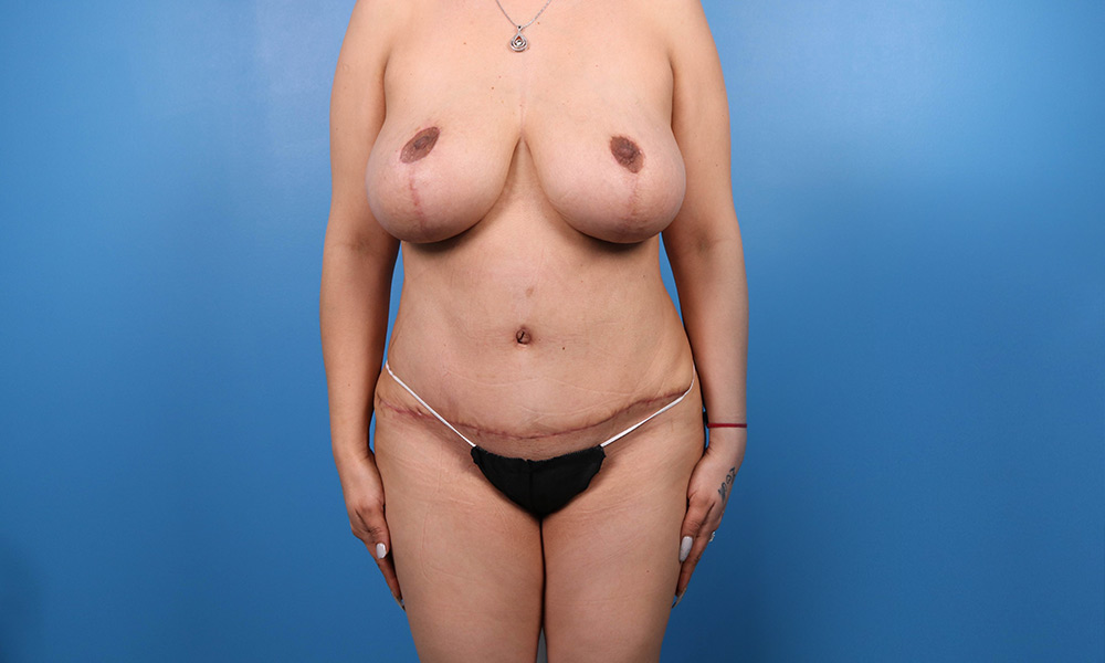 Liposuction Post Surgery Results Front View