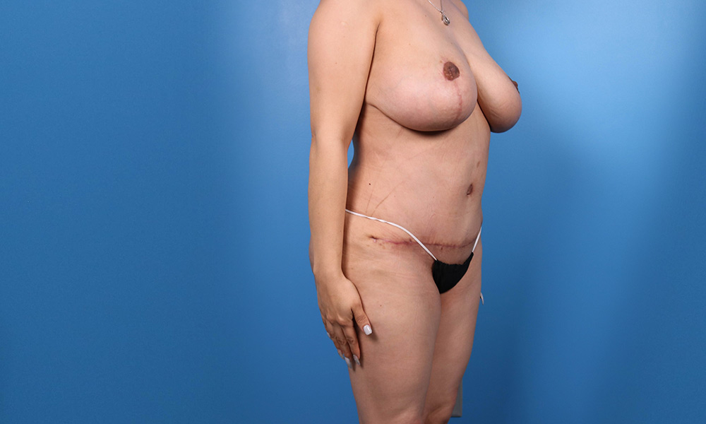 Liposuction Post Surgery Results Angled View