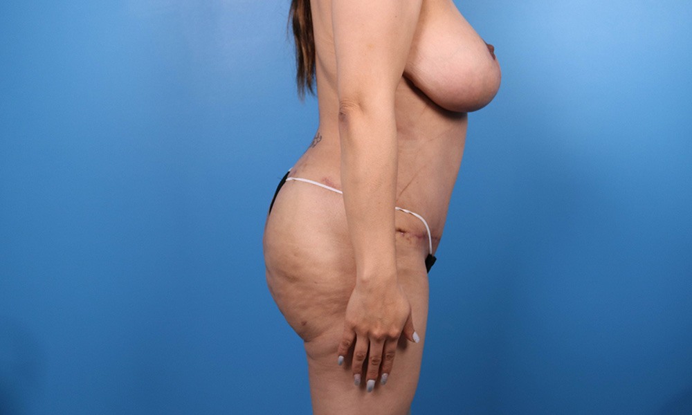 Liposuction Post Surgery Results Side View