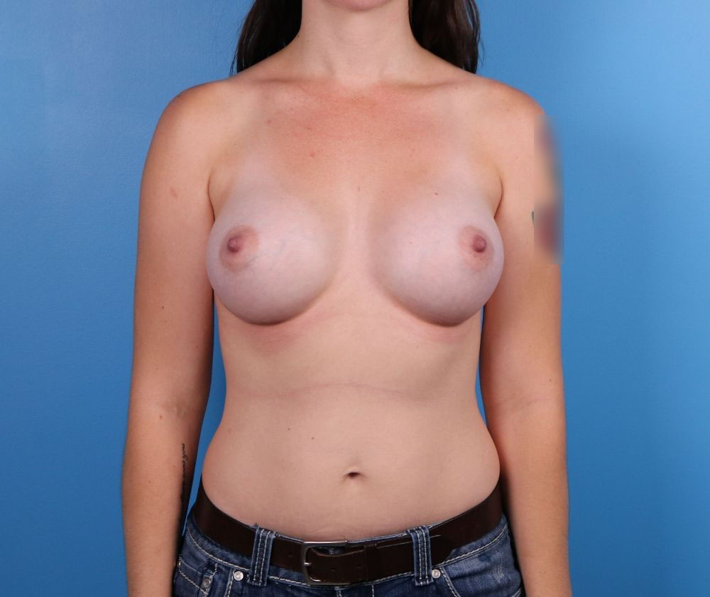 Raleigh Breast Augmentation After Image