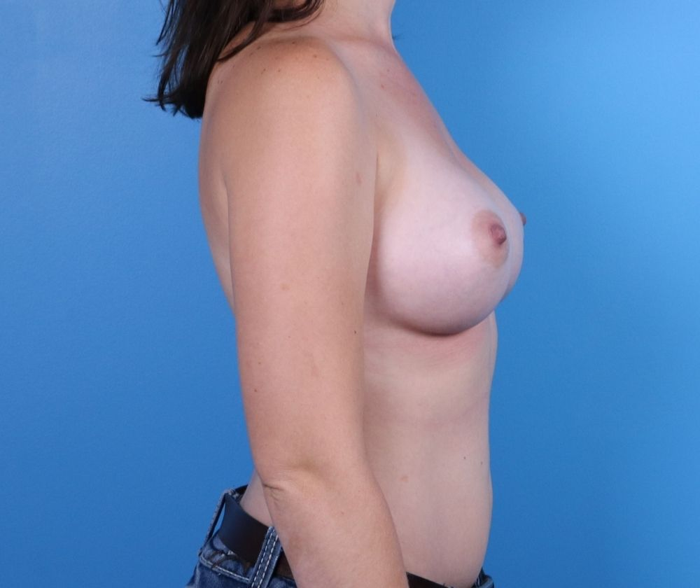 Breast Augmentation Surgery Raleigh After Image-profile