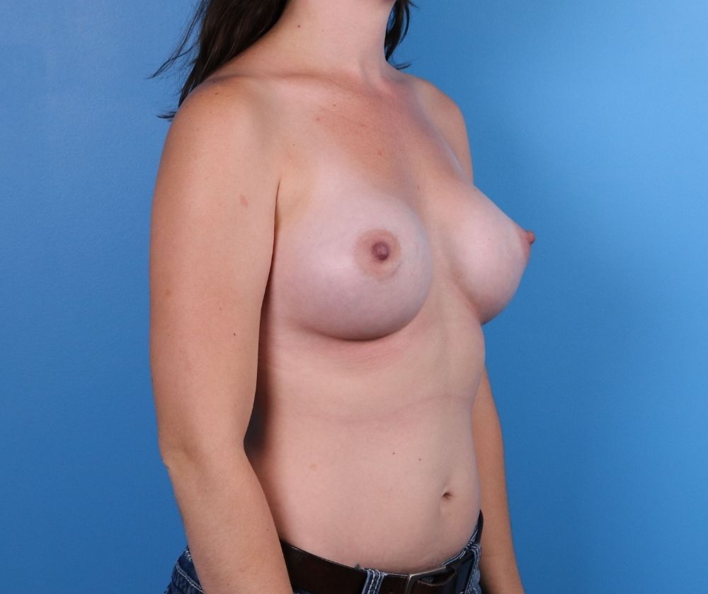 Breast Augmentation Surgery Raleigh after Image-side