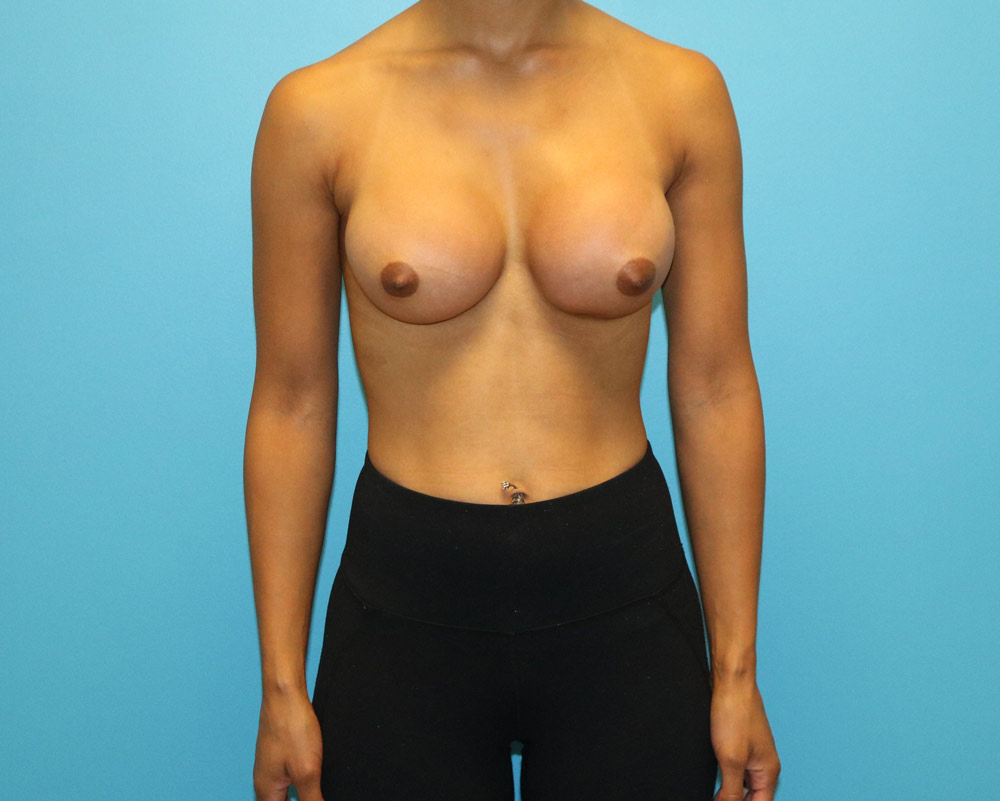 Raleigh Breast Augmentation Surgery after image