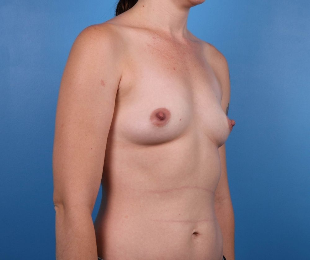 Breast Augmentation Surgery Raleigh Before Image-side