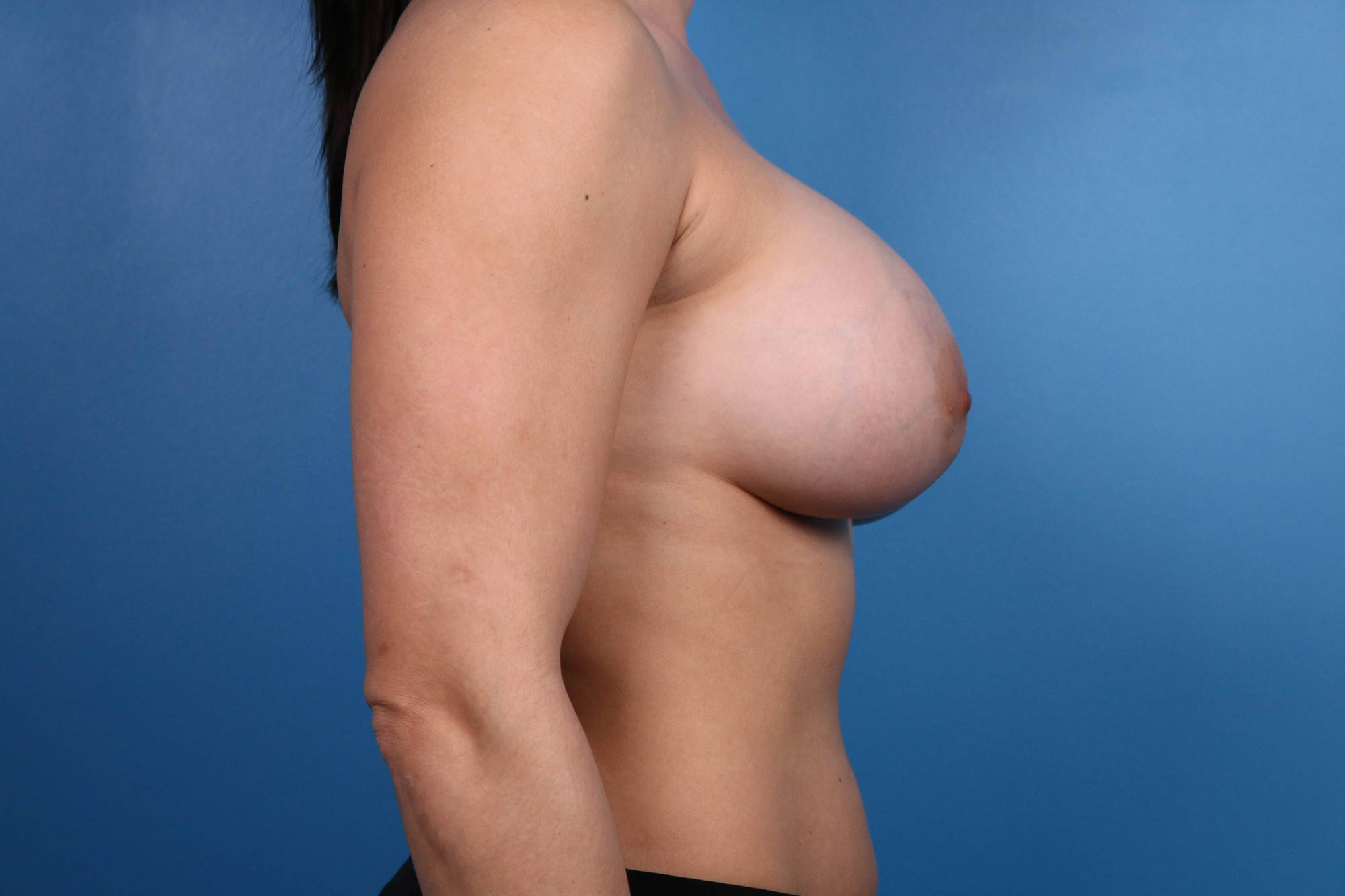 breast augmentation in raleigh