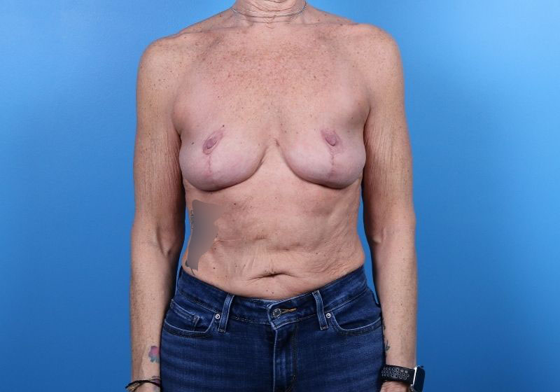 Breast Lift Surgery with augmentation- Front
