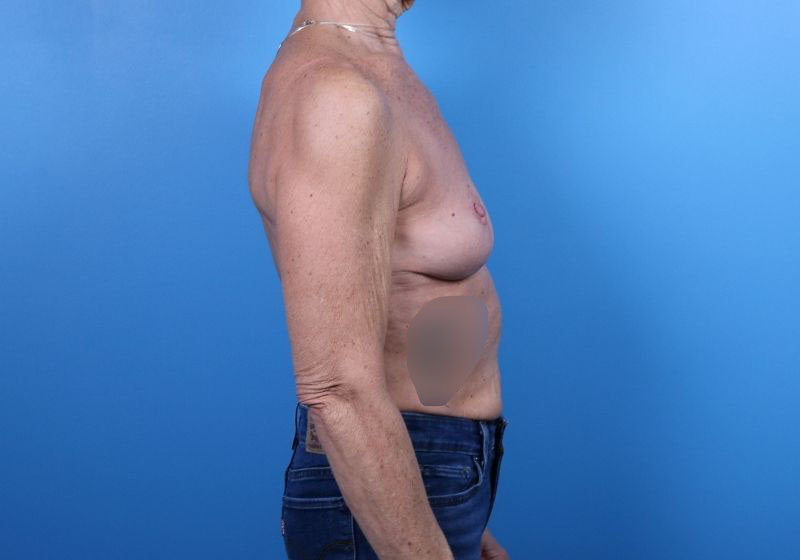 Breast Lift Surgery with augmentation in Raleigh