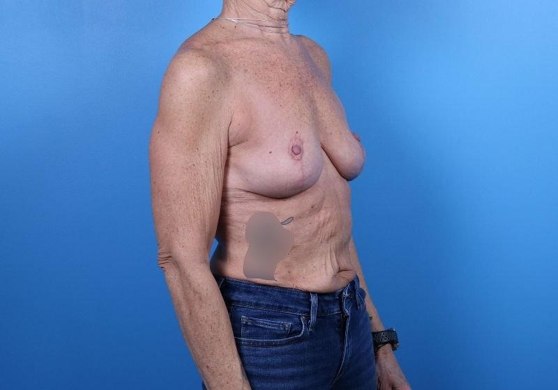 Breast Lift with Augmentation after surgery