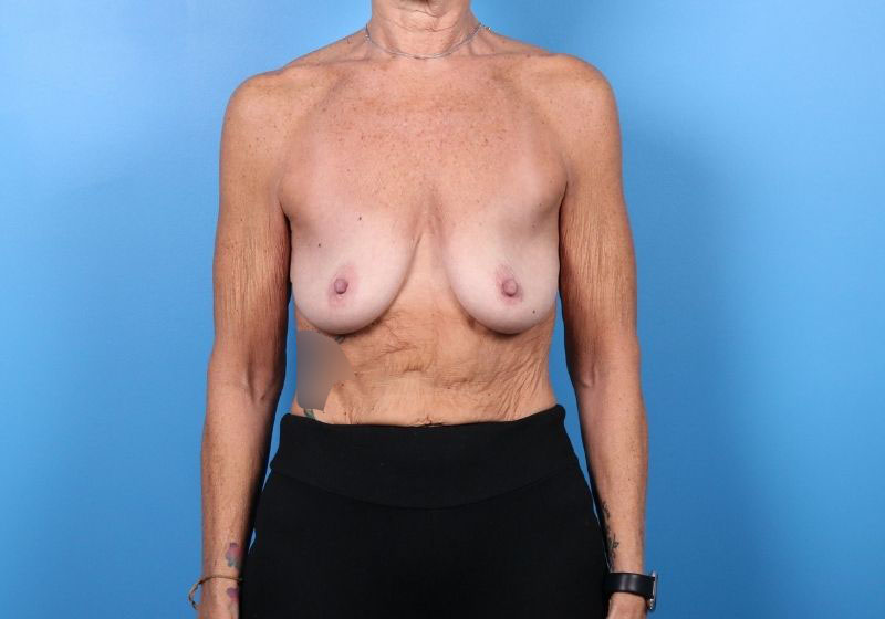 Breast Lift with Augmentation Surgery before- front