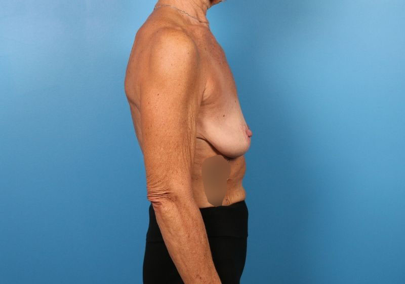 Breast Lift Surgery with Augmentation before-profile