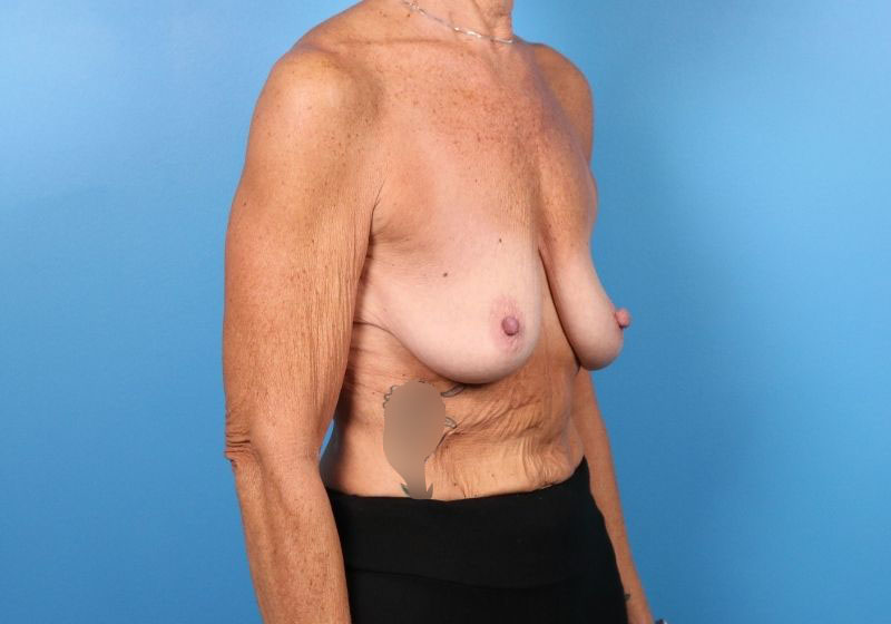 Breast Lift Surgery with Augmentation -before proceedure