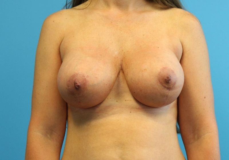 Breast lift with Augmentation raleigh after surgery