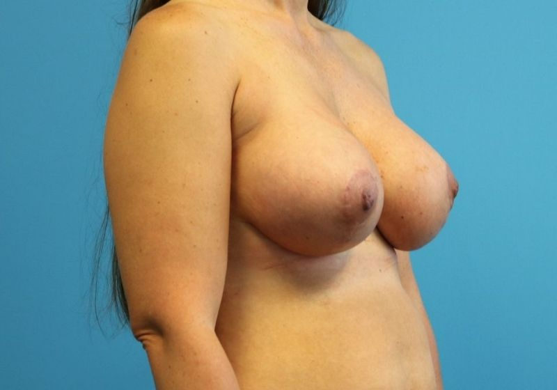 Raleigh Breast lift with Augmentation after surgery