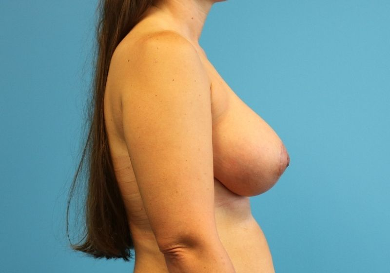 Breast lift with Augmentation after surgery raleigh