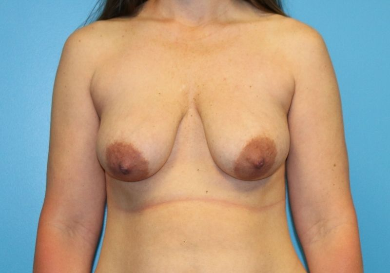 Breast lift with Augmentation before surgery raleigh