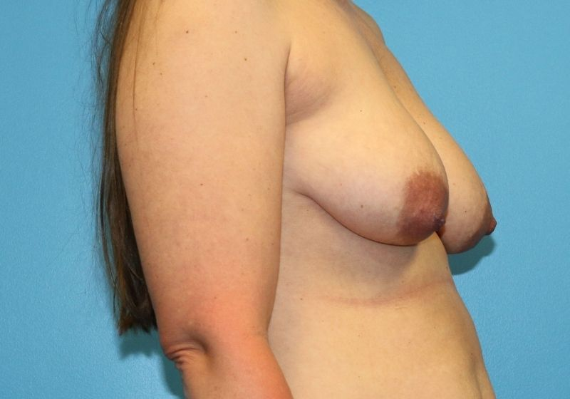 Breast lift with Augmentation surgery raleigh before