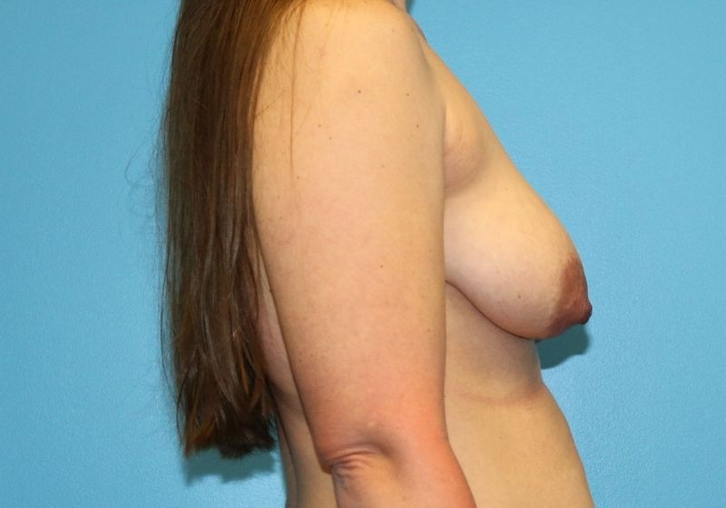 Breast lift with Augmentation raleigh before surgery