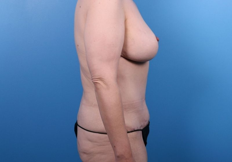 Tummy Tuck Surgery Results Raleigh After