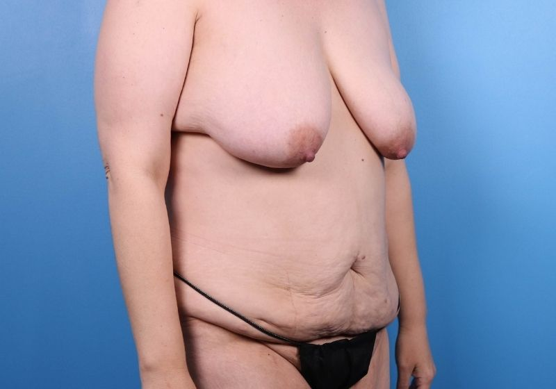 Tummy Tuck Before Surgery Raleigh Side